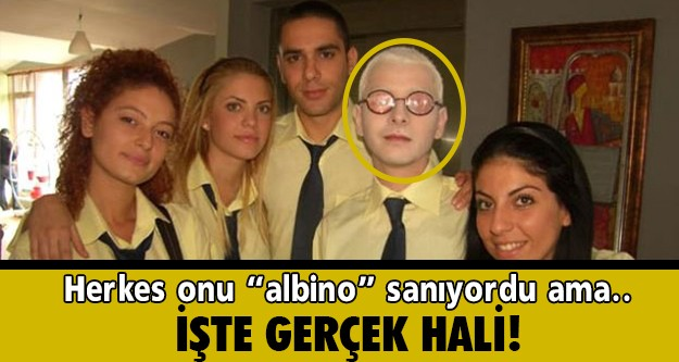 Pis Yedili dizisindeki albino bir genci canlandıran PC rolündeki Ahmet Yıldırım'ı çoğu kişi albino sansa da aslında Ahmet Yıldırım özel bir makyajla bu hale getiriliyor.