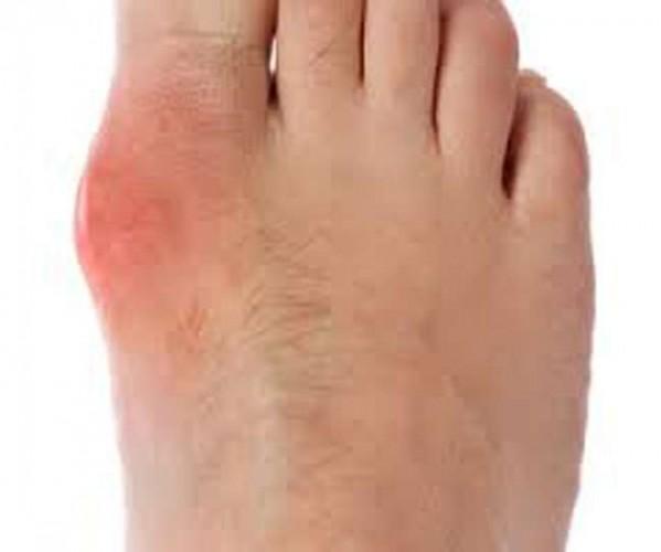 Severek aldığımız ayakkabılar ayaklarımıza vurunca acısından duramadığımız yaralara ve su toplamasına neden olabilir. İşte ayakkabı vurmasına iyi gelen öneriler...