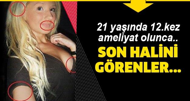 """İsveçli Alexandra """"Kissi Nilsson, 20 yaşında yaptırdığı 12 ayrı plastik cerrahi ameliyatıyla gündemde…"""