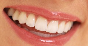 Çürük dişlerdeki büyük tehlike!