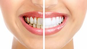 Diş Sağlığı İçin Gereken 10 Besin Maddesi