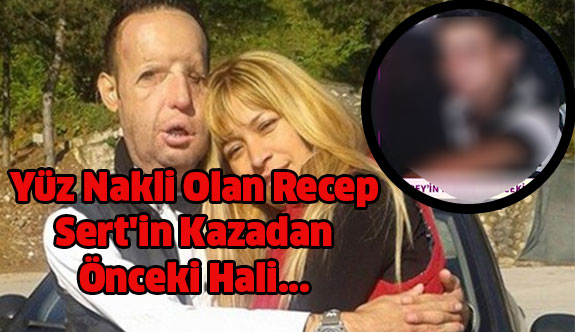 Yüz Nakli Olan Recep Sert'in Kazadan Önceki Hali Bakın Nasıldı...