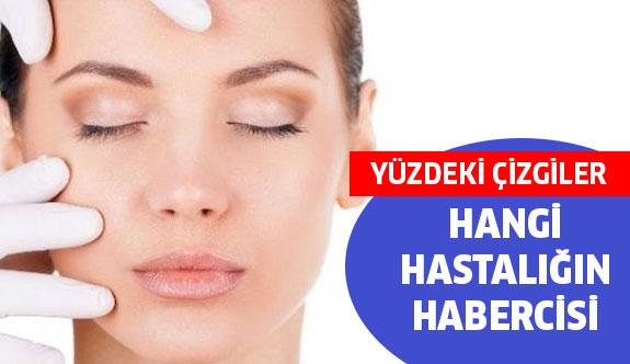 Yüzünüzdeki Çizgiler Hangi Hastalığın Habercisi ?