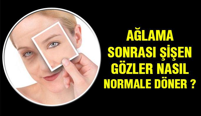 Ağladıktan sonra şişen gözler nasıl normale döner?