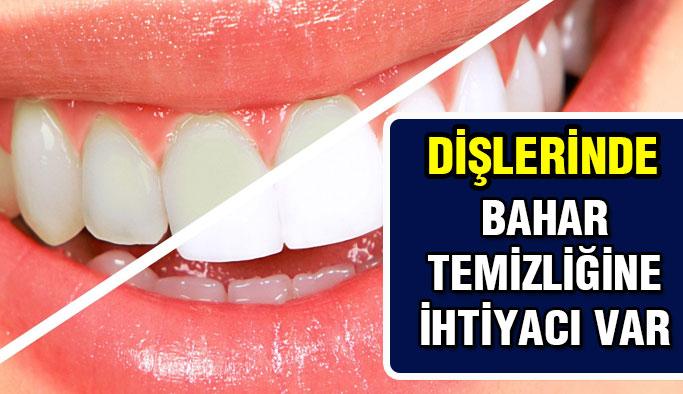 Dişlere bahar temizliği şart!