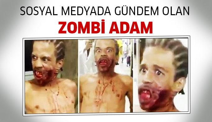 Sosyal Medyanın Gündemi: 'Zombi Adam'