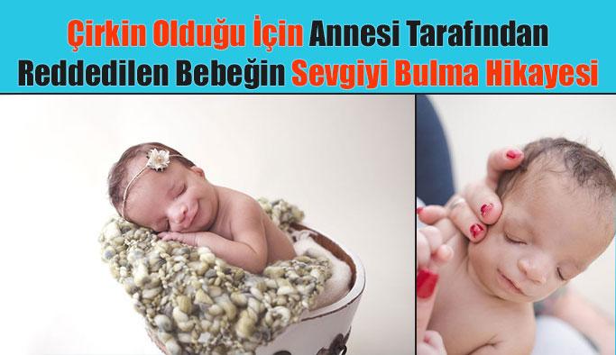 Çirkin Olduğu İçin Annesi Tarafından Reddedilen Bebeğin Hikayesi
