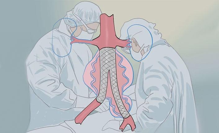 Damar Sertliği Belirtileri ve Tedavisi