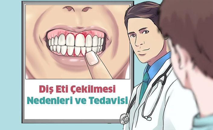 Diş Eti Çekilmesi Nedenleri ve Tedavisi