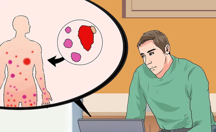 Yumuşak Doku Kanseri Belirtileri ve Tedavisi