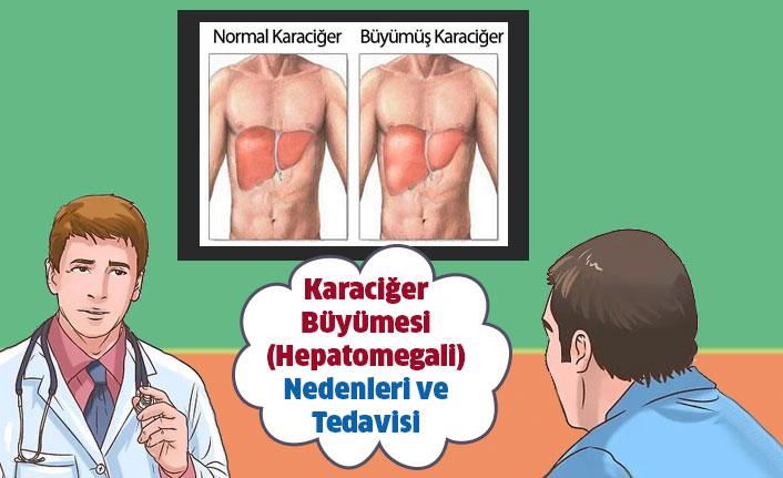 Karaciğer Büyümesi - Hepatomegali Nedenleri ve Tedavisi