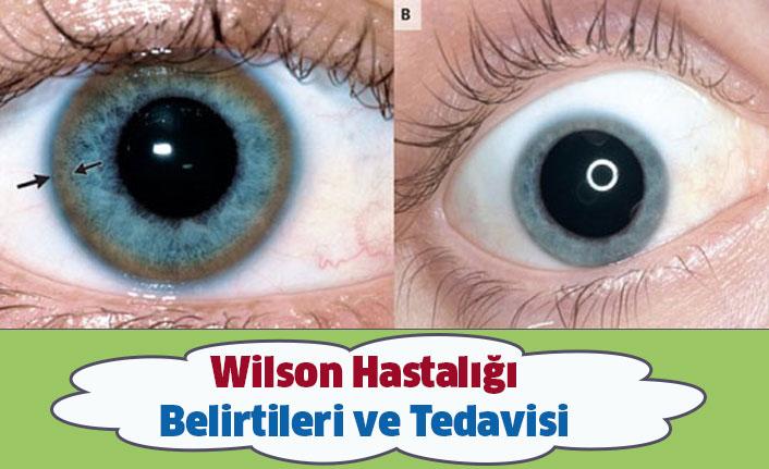 Wilson Hastalığı Belirtileri ve Tedavisi