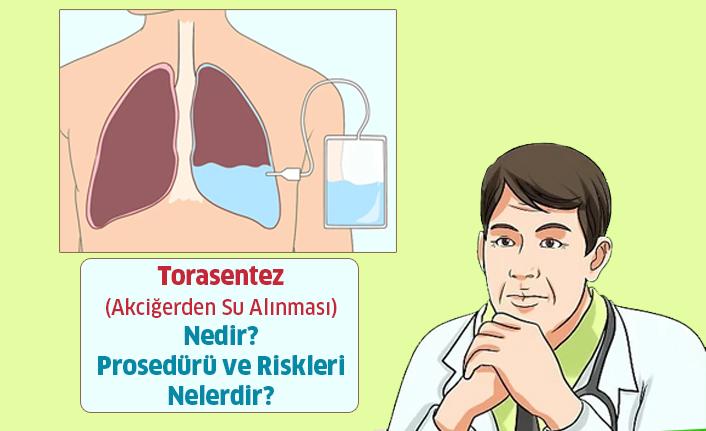 Torasentez - Akciğerden Su Alınması Nedir?