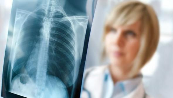 Gereksiz çekilen röntgen kanser riskini arttırıyor!