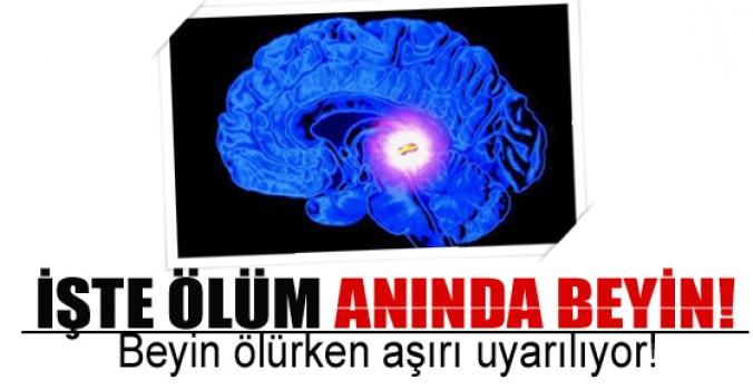 Ölüm anında beyin!