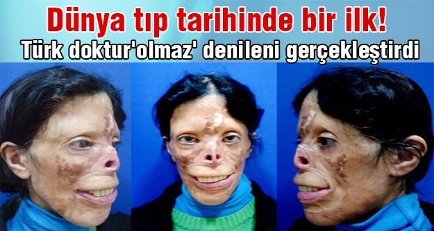Prof. Dr. Mehmet Mutaf nakilsiz yüz nakli yaptı