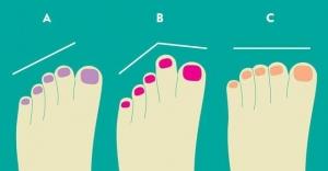 Ayak parmaklarınız sizi ele veriyor!