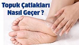 Topuk Çatlakları Tedavisi Nedir ?