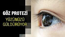 Göz Protezi Artık Yüz Güldürüyor...