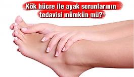 Kök hücre ile ayak sorunlarının tedavisi...