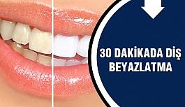 Yarım Saat İçinde Dişlerinizi Beyazlatın! Nasıl Mı?