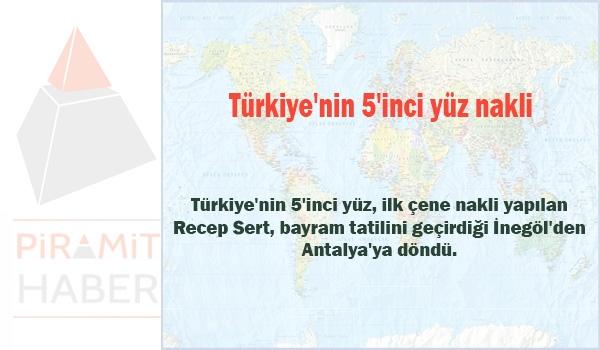 Türkiye'nin 5'inci yüz nakli
