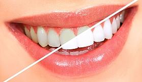 Leke çıkarıcı diş macunlarından uzak durun...