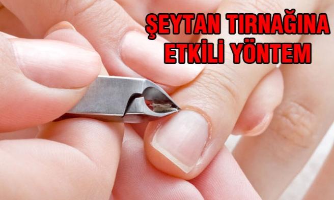 Şeytan Tırnaklarınız İçin Doğal Ve Basit Çözümler