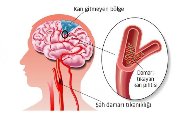 Beyin Damar Tıkanıklığı Belirtileri ve Tedavisi