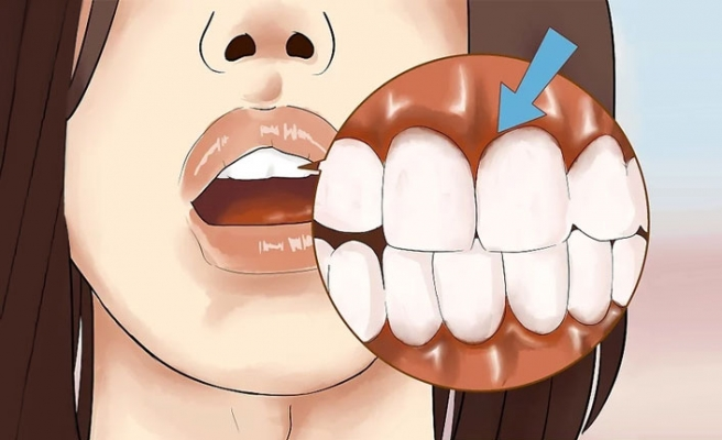 Diş Eti İltihabı Belirtileri ve Tedavisi