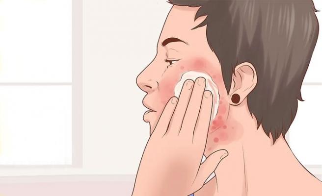 Atopik Dermatit Belirtileri ve Tedavisi
