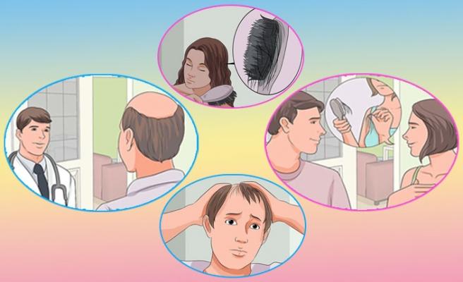 Saç Dökülmesi ve D Vitamini Eksikliği