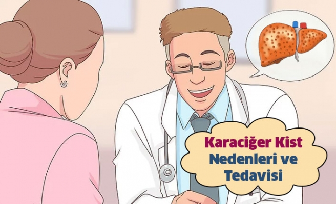 Karaciğer Kisti Nedenleri ve Tedavisi