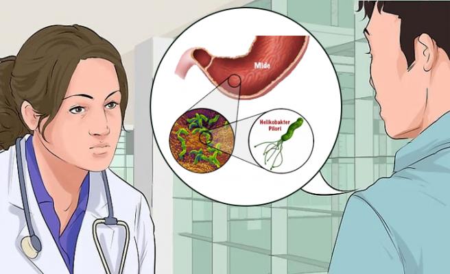 Mide Mikrobu Belirtileri ve Tedavisi