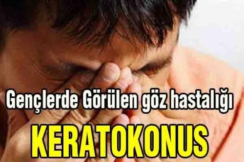 Gençlerde Görülen göz hastalığı, KERATOKONUS
