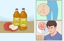 Siğiller İçin Elma Sirkesi Tedavisi