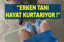 Prostat Kanseri: Erken Tanı Hayat Kurtarıyor !