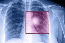 Akciğer kanserini basit bir kan testi ile öğrenebilirsiniz