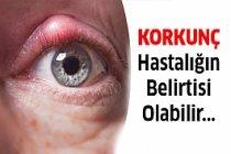Gözleriniz Sağlığınız İle İlgili Neler Söylüyor ?