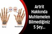 Artrit İle İlgili Muhtemelen Bilmediğiniz 5 Şey