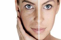 Genişlemiş Gözenekleriniz İçin Doğal Tedavi Yöntemleri