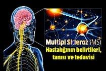 Multipl Skleroz (MS) Hastalığı belirtileri, tanısı ve tedavisi