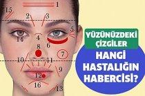 Yüz kırışıklıklarının hastalık habercisi olduğunu biliyor musunuz?