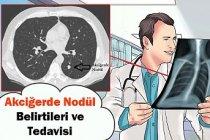 Akciğerde Nodül Belirtileri ve Tedavisi
