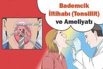 Bademcik İltihabı (Tonsillit) ve Ameliyatı