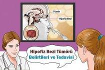 Hipofiz Bezi Tümörü Belirtileri ve Tedavisi