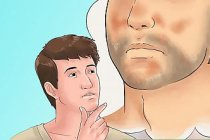 Seboreik Dermatit Belirtileri ve Tedavisi