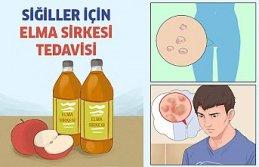 Hpv Virüsü Elma Sirkesi Tedavisi