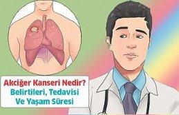 Akciğer Kanseri Belirtileri Yaşam Süresi ve Tedavisi