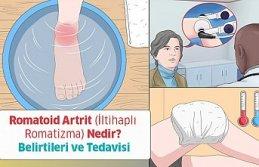 Romatoid Artrit (İltihaplı Romatizma) Nedir? Belirtileri ve Tedavisi